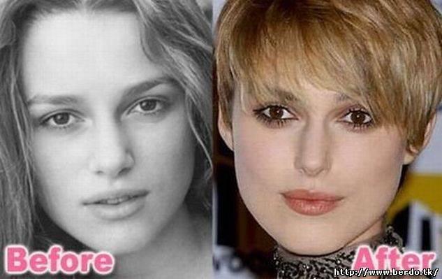 кира найтли пластика фото до и после